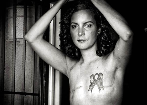 """Bộ ảnh gây choáng về ung thư vú với chủ đề """"Vết sẹo"""""""