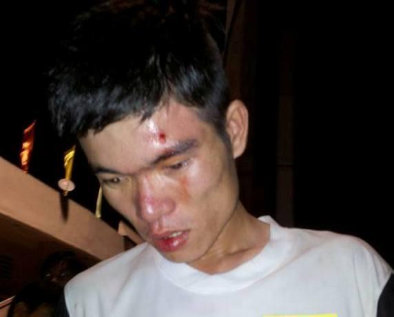Tung Thanh Tran mt ca anh Thanh Tng