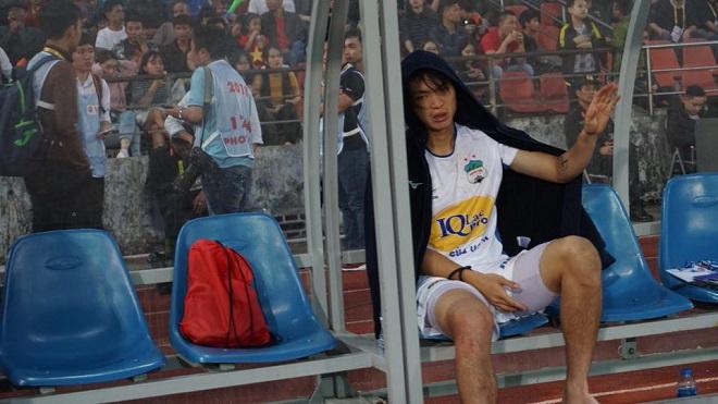 Tuấn Anh phải nằm viện thêm 1 tuần, U19 Việt Nam loại cầu thủ Việt Kiều